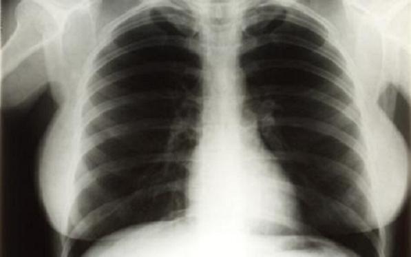 Monroe-chest-x-ray