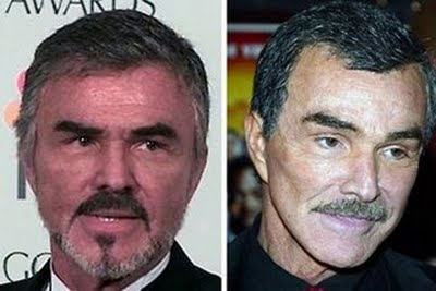 Burt-reynolds-face-lift-2