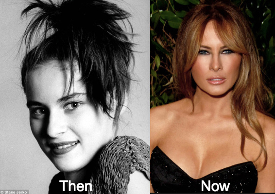WOW! She kept the plastic surgeon busy